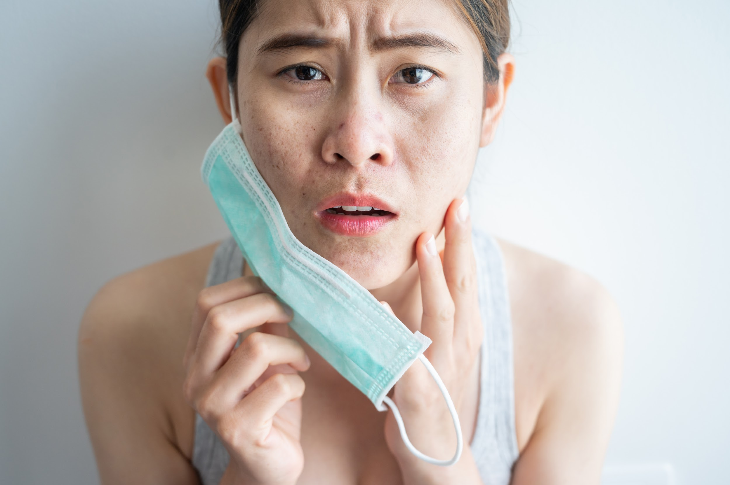 Asian woman worry about acne occur on her face after wearing mask